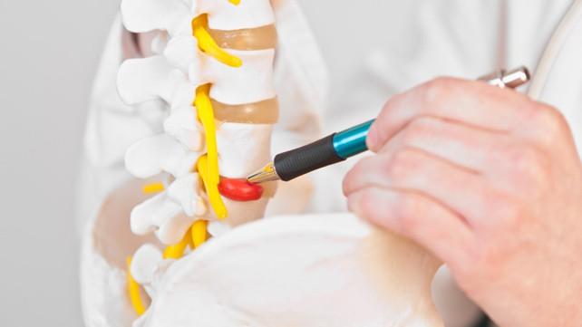 Tratamento Cirúrgico de Lesões Degenerativas da Coluna Vertebral