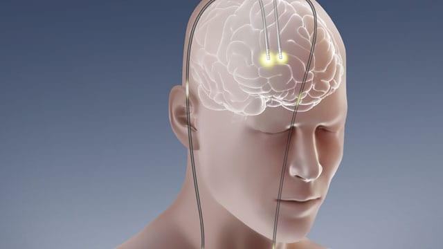 tratamento dos distúrbios psiquiátricos