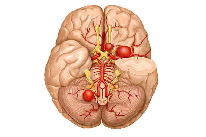Tratamento de Aneurismas Cerebrais