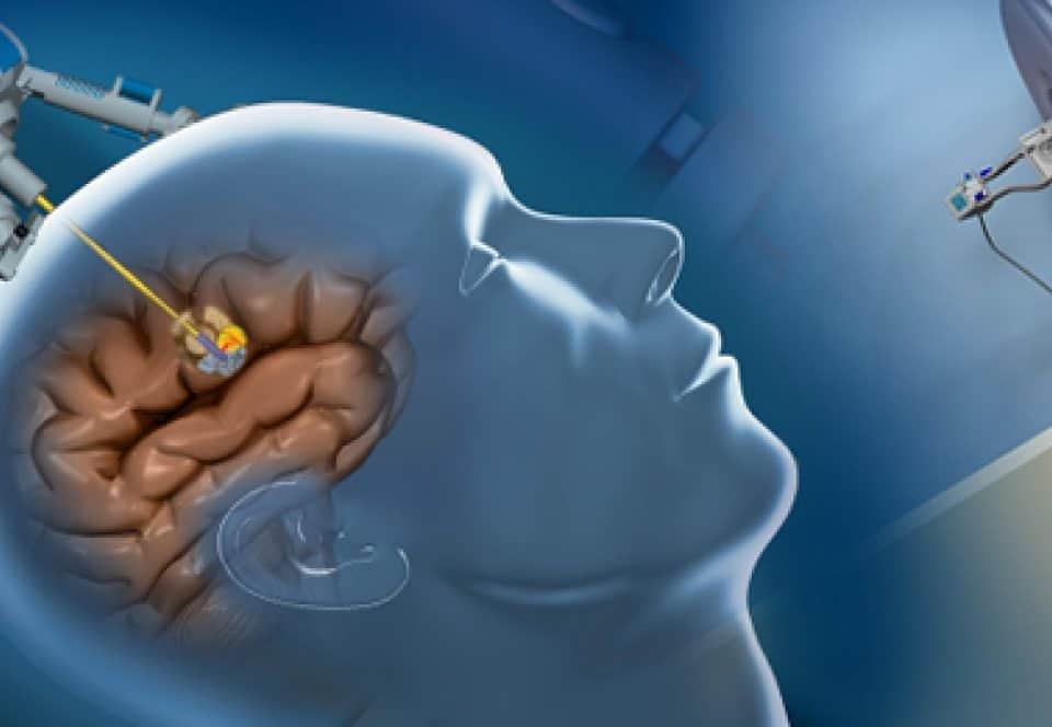 Tratamento Cirúrgico de Tumores Cerebrais