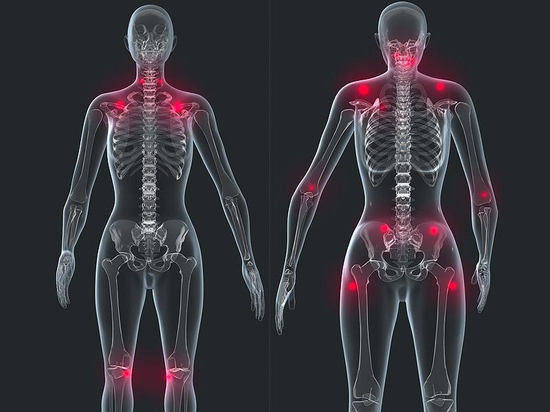 Da fibromialgia precoce síndrome