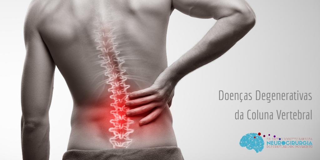 Do doença nas degenerativa dor disco pernas causa